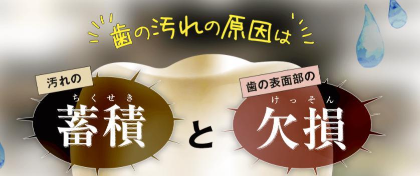 キラッとホワイト(KirattoWhite) 歯の黄ばみの原因